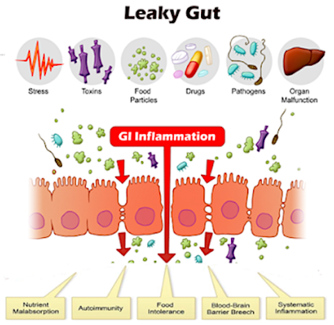 Leaky Gut, Why Do We Need To Test?
